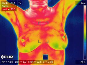 Imagen de termografía.