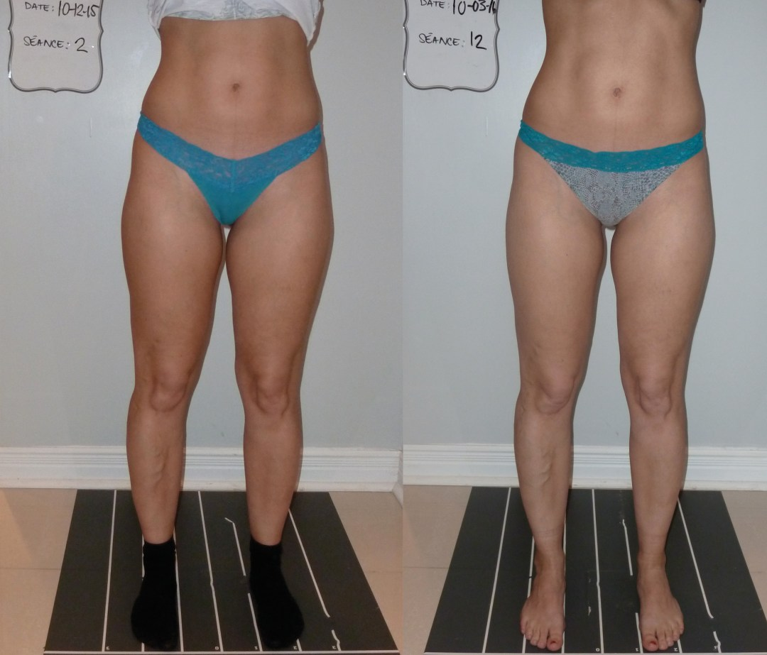 endermologie_corps_cellulite