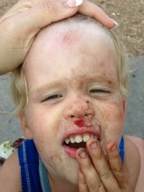 Why toddlers and skateboards don't mix.
