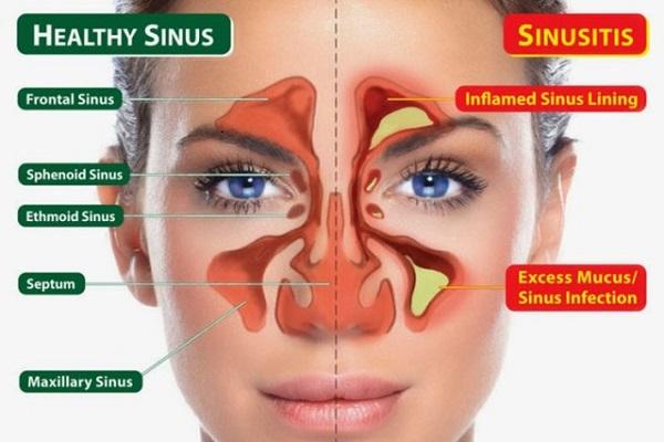 Sinusitis, een vroege waarschuwing voor fibromyalgie?