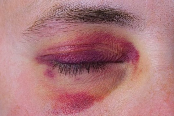 Fibromialgia y moretones: efectos de una enfermedad invisible