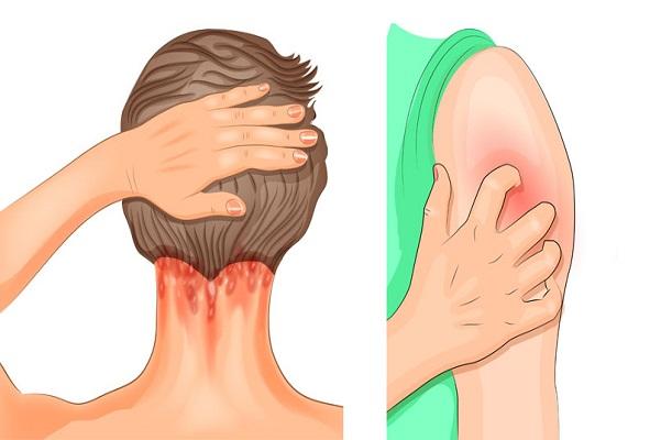 9 Vroege tekenen van fibromyalgie Iedereen moet zich bewust zijn van