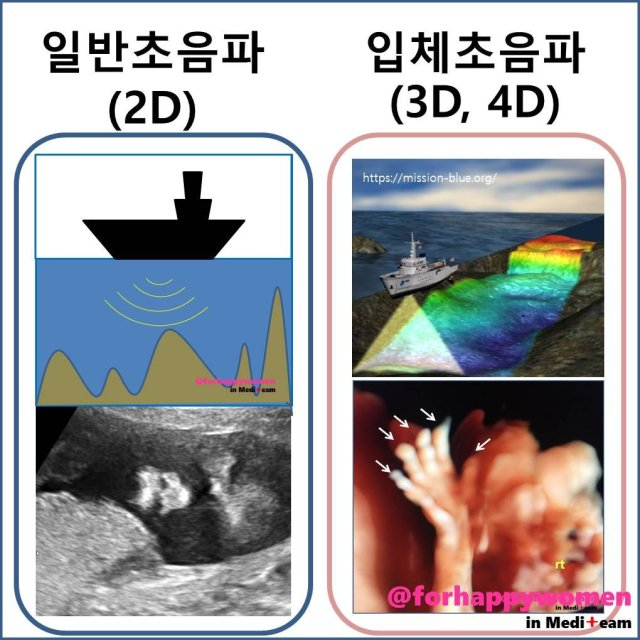 일반초음파VS입체초음파.jpg