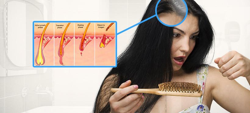 Cara Mengatasi Rambut Rontok Secara Alami Dan Cepat