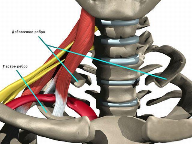 La costillas extras o cervicales son una de las Características corporales poco comunes que se presentan generalmente en las mujeres