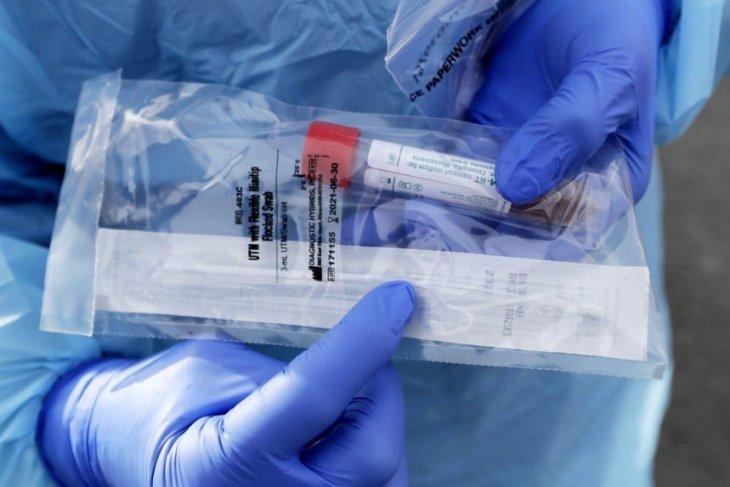 быстрый тест на корнавирус
