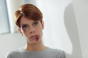 Photo of beaten young Caucasian woman