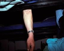 mechanic's arm
