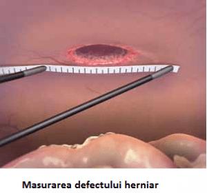 Masurarea defectului herniar