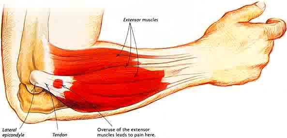 extensors in forearm