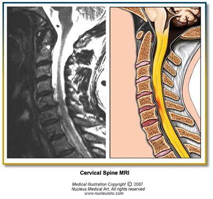 Cervical_Spine_MRI