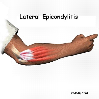 Lateral epicondyle 2