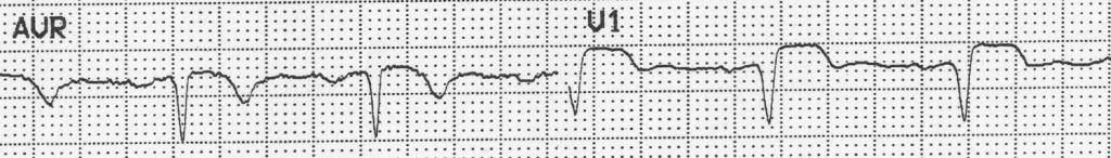 Unusual ECG 2