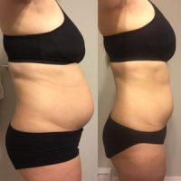 before after keto 3 months side profile, keto diet before and after pictures, keto diet success story, before after weight loss