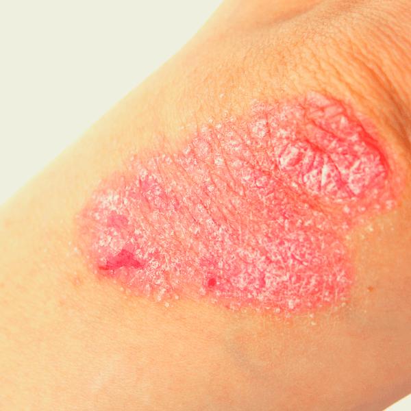psoriasis elbow