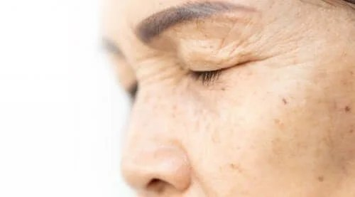 4 Natural Ingredients To Raise Your Eyelids