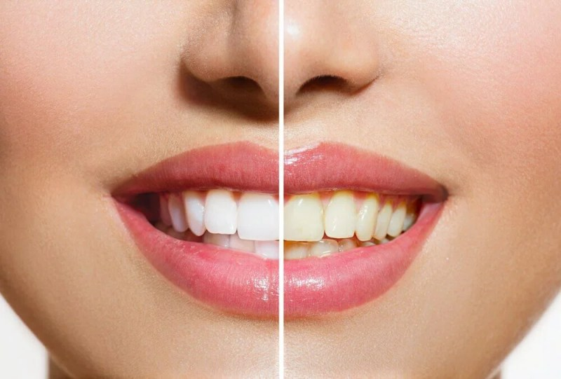 Produtos naturais que ajudarão a clarear seus dentes