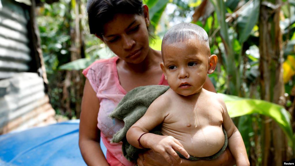 Venezolanos sin posibilidad de prevenir enfermedades