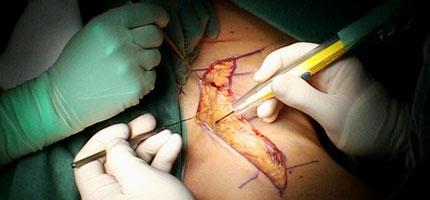 Left inguinal lymph node dissection.