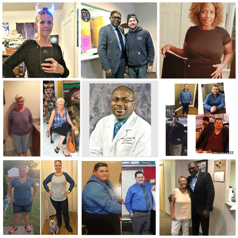 Dr. Adeyeri's patients share their bariatric weight loss success stories.