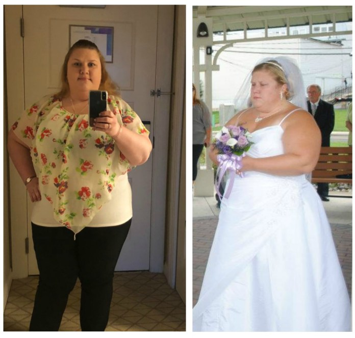 Nocole was battling obesity and turned to gastric bypass to lose 90 pounds in one year