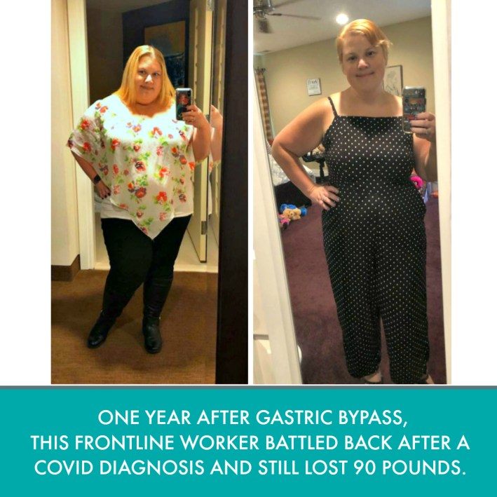 The New Jersey woman had gastric bypass and lost 90 pounds after Dr. ADeyeri perform rny gastric bypass weight loss surgery