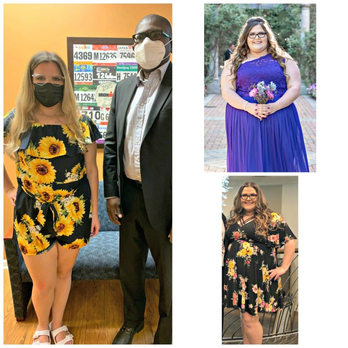 Nicole loses 150 pounds after gastric bypass bariatric weight loss surgery performed by Dr. Adeyeri in New Jersey