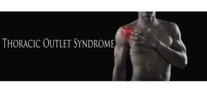 thoracic outlet syndrome doctor st george utah