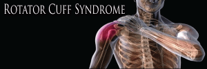 rotator cuff syndrome doctor St George Utah