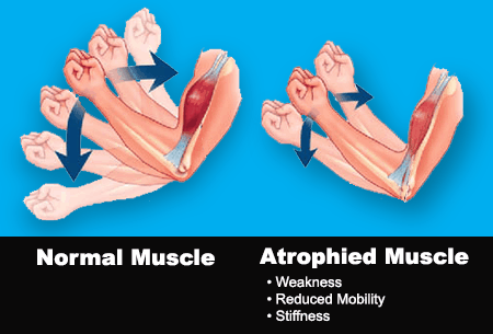 EMS & TENS for muscle atrophy