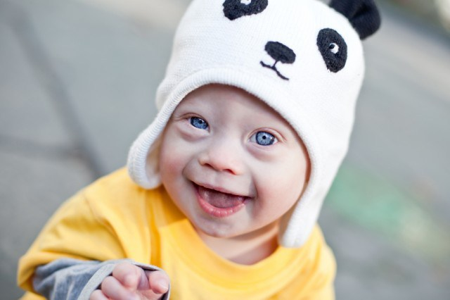 cute-down-syndrome-baby1-640x426