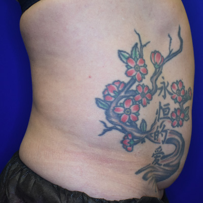 Liposuction Before 2