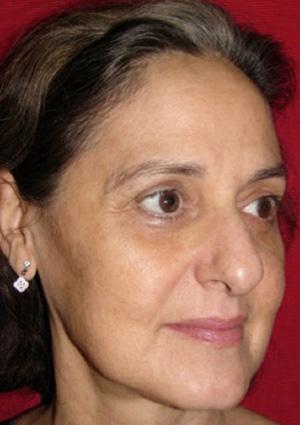 Co2 Facial Rejuvenation After Patient #1