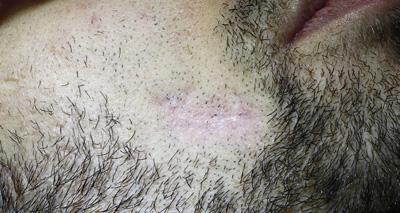 Co2 Facial Rejuvenation 5 Treatments After Patient #2
