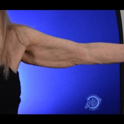 Facetite Arms - 1 Month After