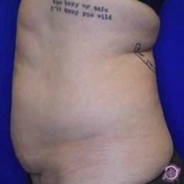 Liposuction Before 1