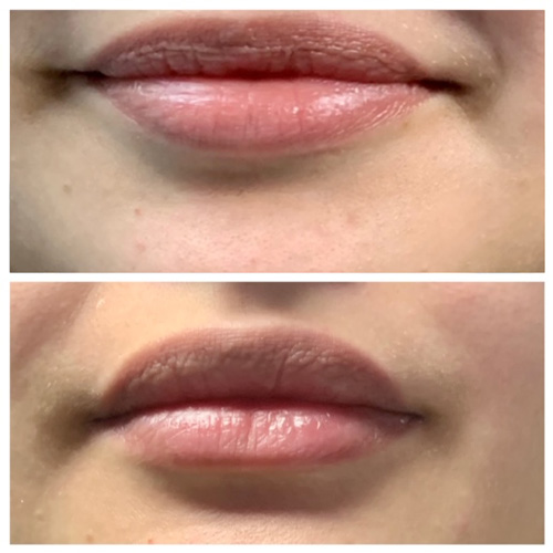 Botox Lip Flip - Lower Lip Before and After