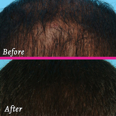 PRP Therapy - Before and After