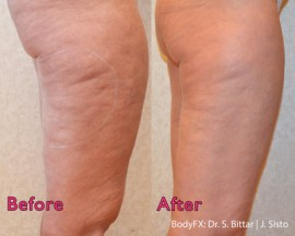 BodyFX in Legs - Before and After