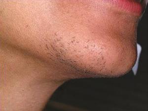 Hirutism - Laser Hair Removal Before