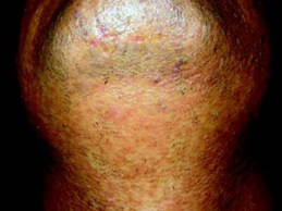Laser Hair Removal - After
