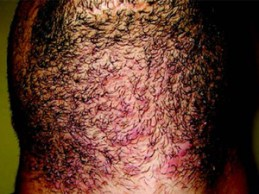 Laser Hair Removal - Before