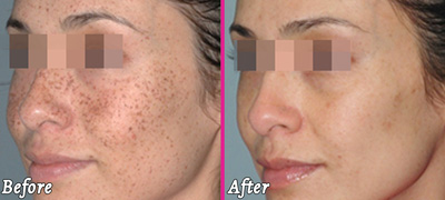 Lumecca Freckles Face - Before and After