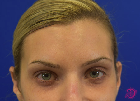Cosmetic Injectables After - Newtox After