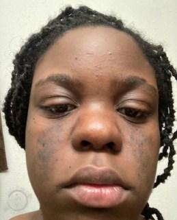 Hirsutism Face - Before