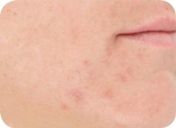 Acne LED Light Therapy After
