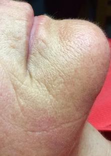 Anti-aging Wrinkles Before