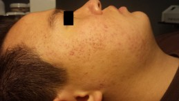 Celluma Acne After