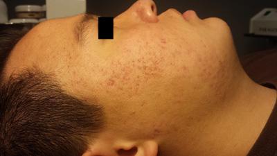 Celluma Acne After
