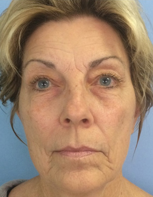 Celluma - Anti-aging After